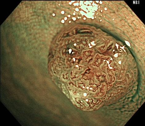 ②NBI拡大観察により切除が必要な病変と診断しました。軽度異形腺腫であり、コールドポリペクトミーのよい適応病変です。