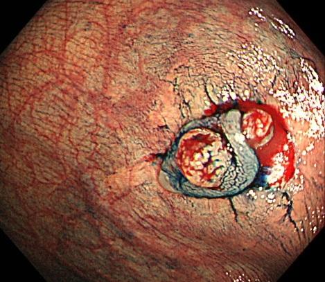 ③周囲の正常な粘膜を含めて、過不足なく病変を切除します。