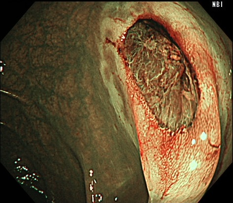 ④切除後にNBI観察を行い、病変の遺残がないことを確認します。
